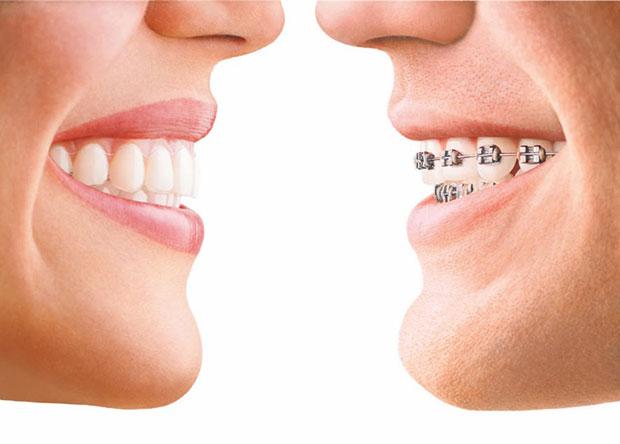 aparatic_za_zube